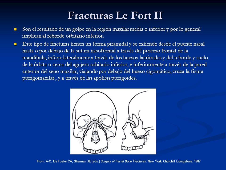 Fracturas Le Fort II Son el resultado de un golpe en la región maxilar media o inferior y por lo general implican al reborde orbitario inferior.