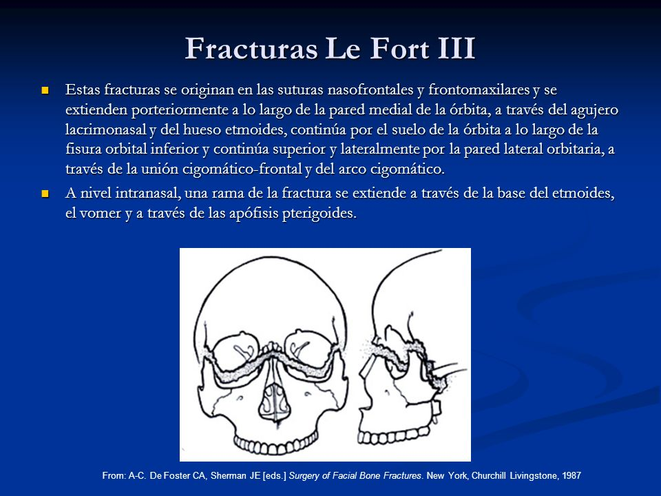 Fracturas Le Fort III
