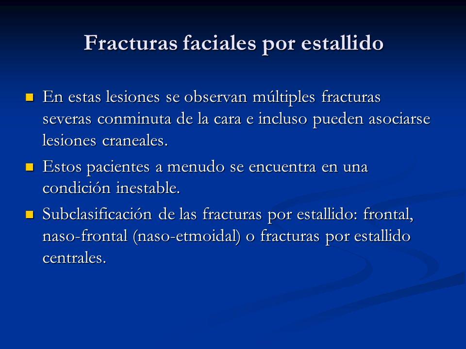 Fracturas faciales por estallido