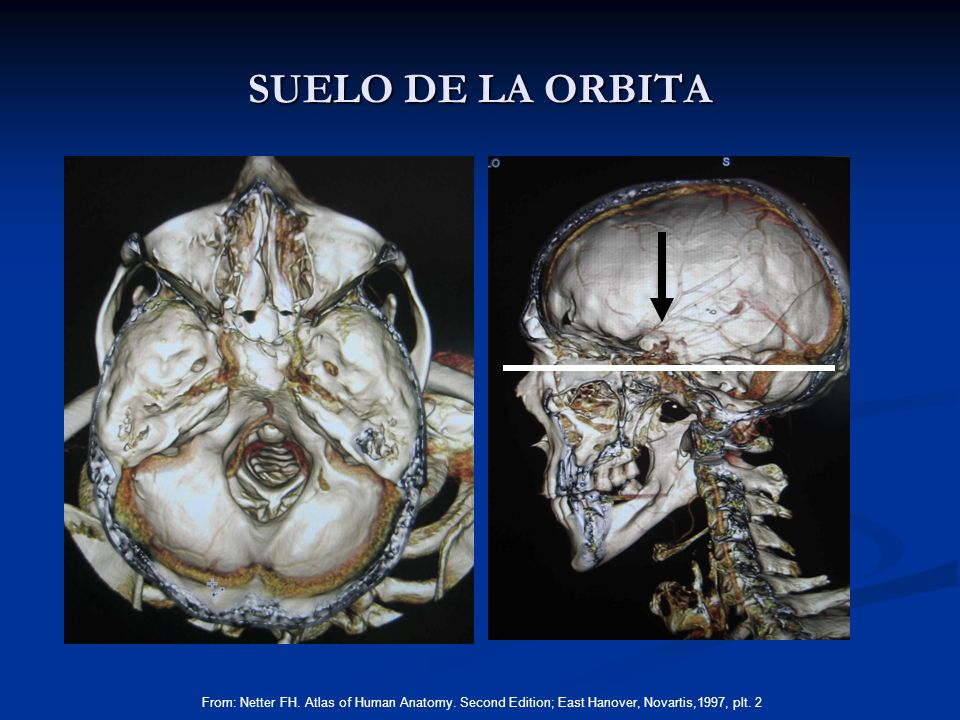 SUELO DE LA ORBITA From: Netter FH. Atlas of Human Anatomy.
