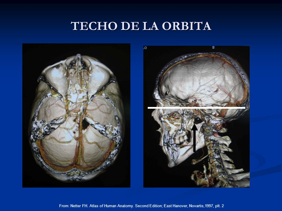 TECHO DE LA ORBITA From: Netter FH. Atlas of Human Anatomy.