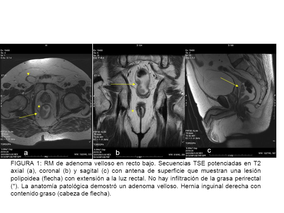 spin-echo T2-weighted MR image obtained with a - ppt video online ...