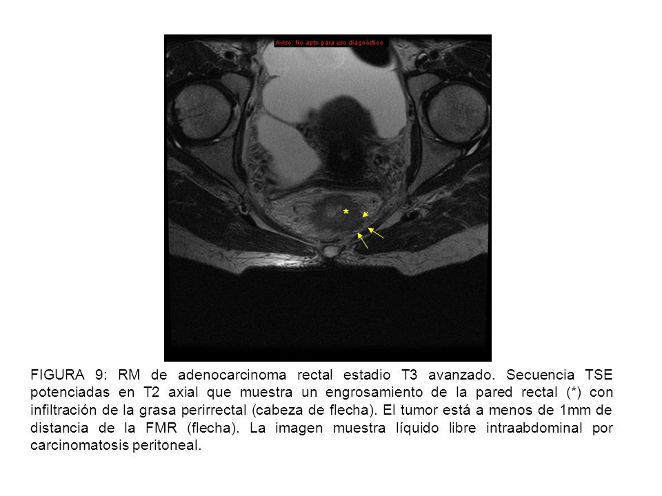 the images are free intraabdominal fluid peritoneal carcinomatosis