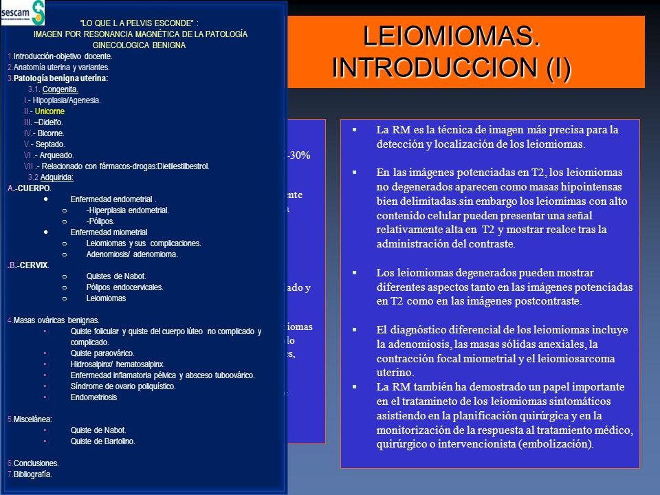 LEIOMIOMAS. INTRODUCCION (I)