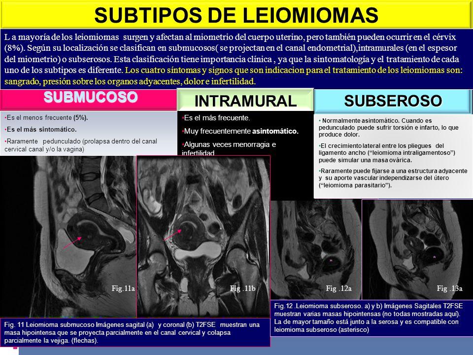 SUBTIPOS DE LEIOMIOMAS