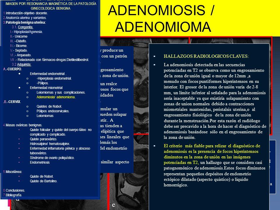 ADENOMIOSIS / ADENOMIOMA