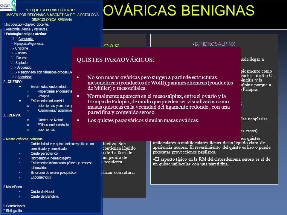 4.-MASAS OVÁRICAS BENIGNAS