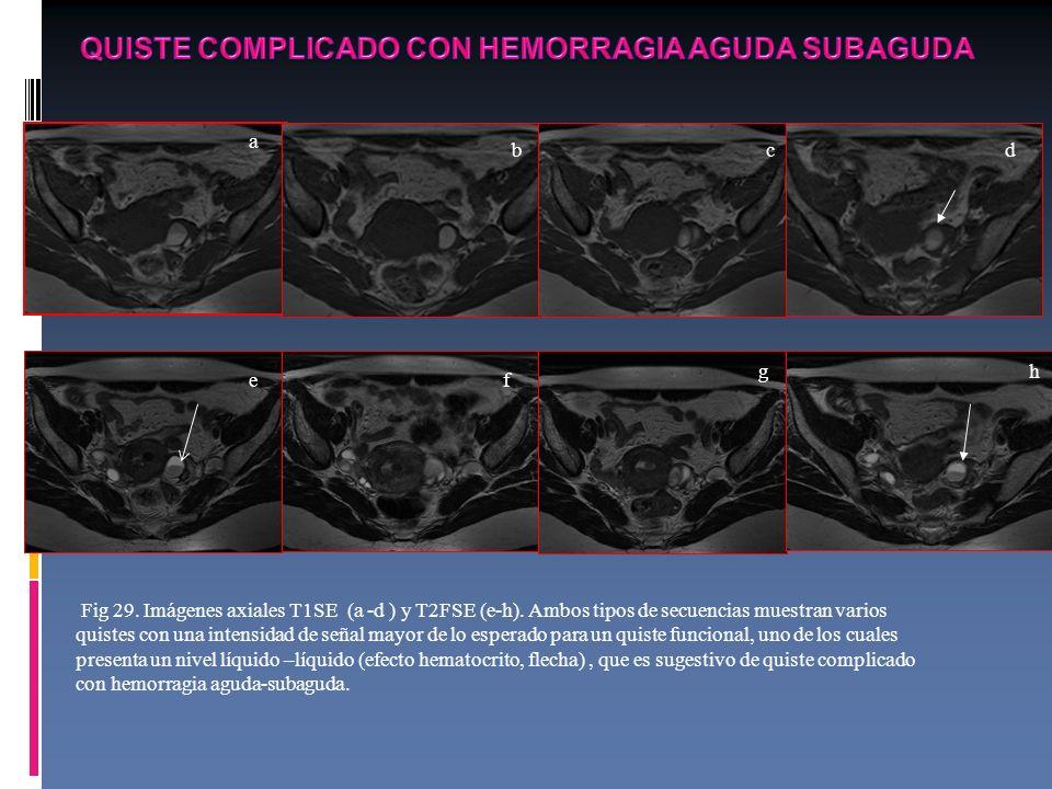 QUISTE COMPLICADO CON HEMORRAGIA AGUDA SUBAGUDA