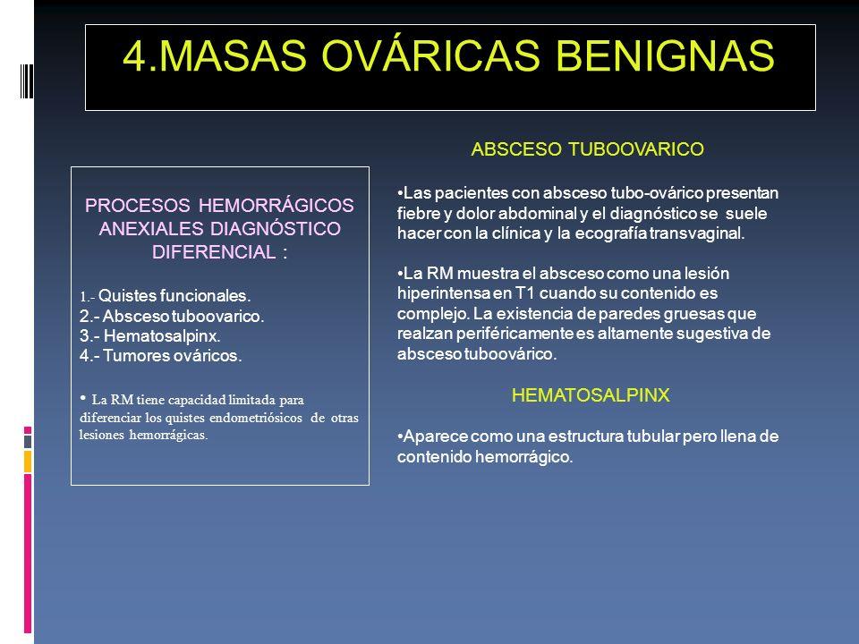 4.MASAS OVÁRICAS BENIGNAS