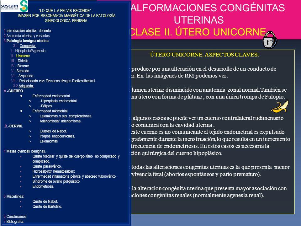 A.MALFORMACIONES CONGÉNITAS UTERINAS CLASE II. ÚTERO UNICORNE.