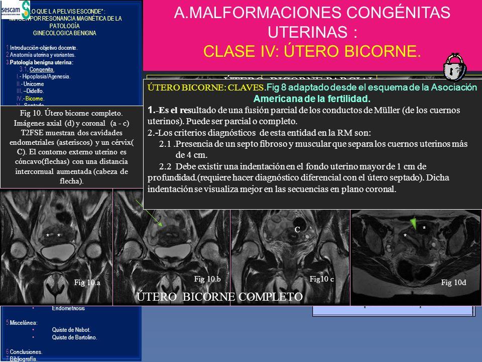 A.MALFORMACIONES CONGÉNITAS UTERINAS : CLASE IV: ÚTERO BICORNE.