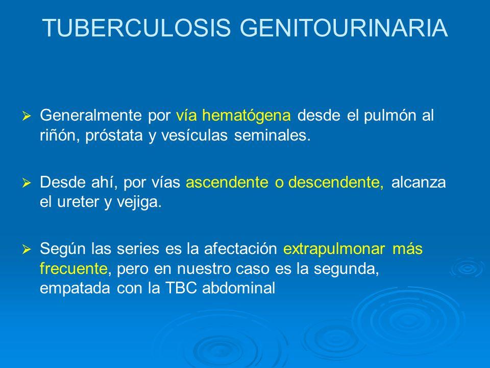 TUBERCULOSIS GENITOURINARIA