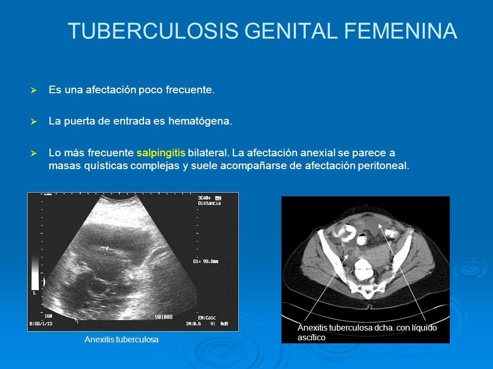TUBERCULOSIS GENITAL FEMENINA