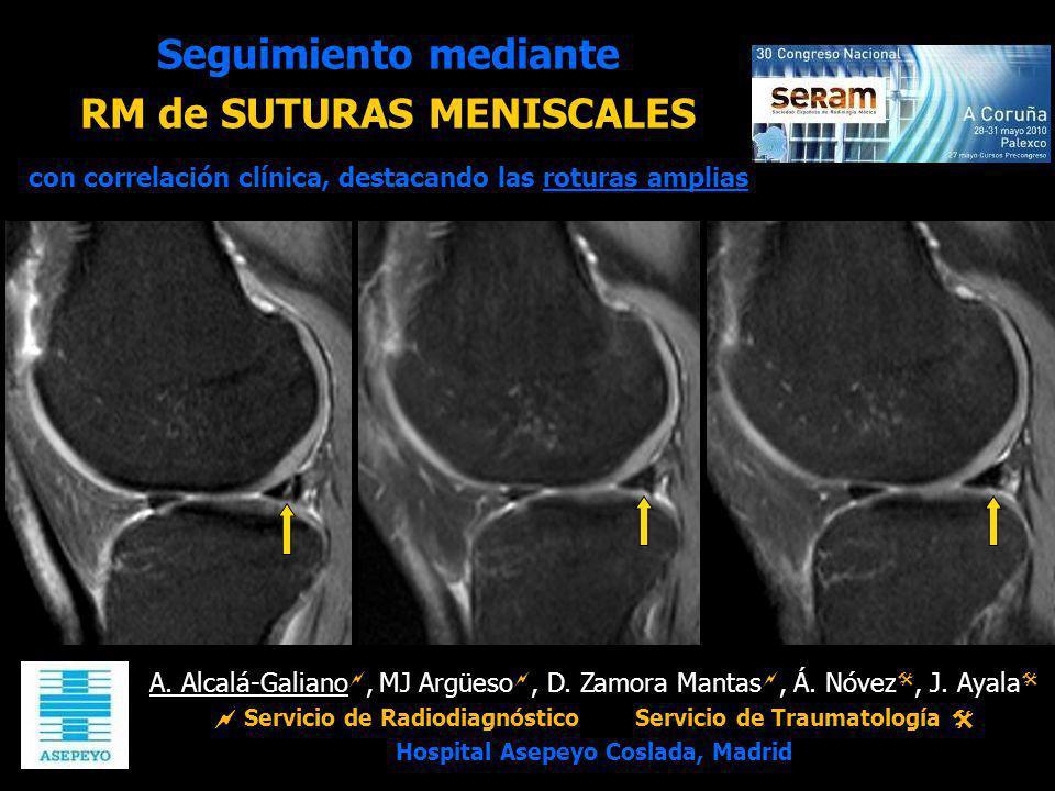 Seguimiento mediante RM de SUTURAS MENISCALES con correlación clínica, destacando las roturas amplias
