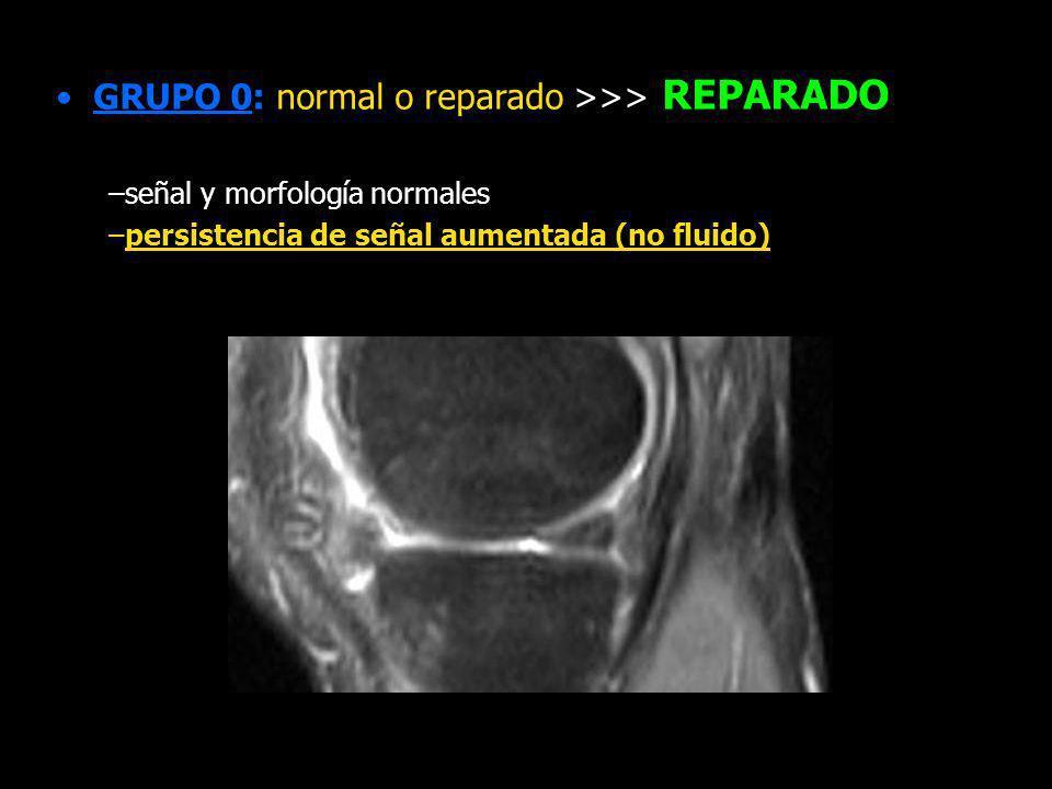GRUPO 0: normal o reparado >>> REPARADO