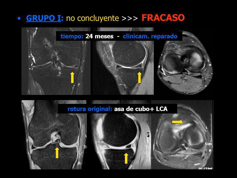 GRUPO I: no concluyente >>> FRACASO