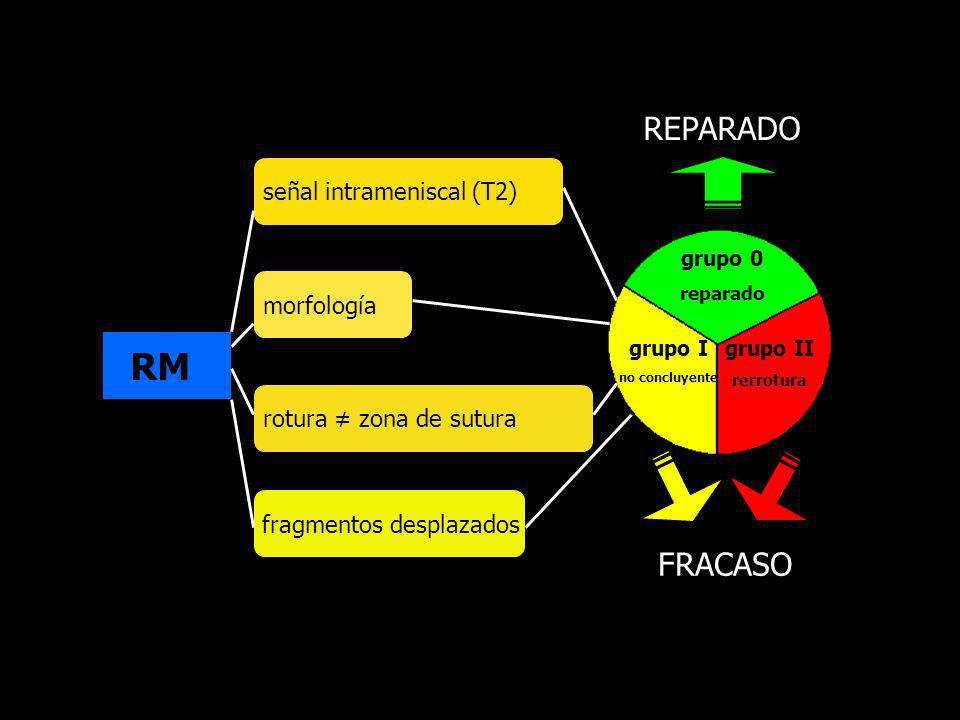RM REPARADO FRACASO señal intrameniscal (T2) morfología