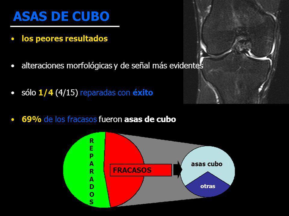 ASAS DE CUBO los peores resultados