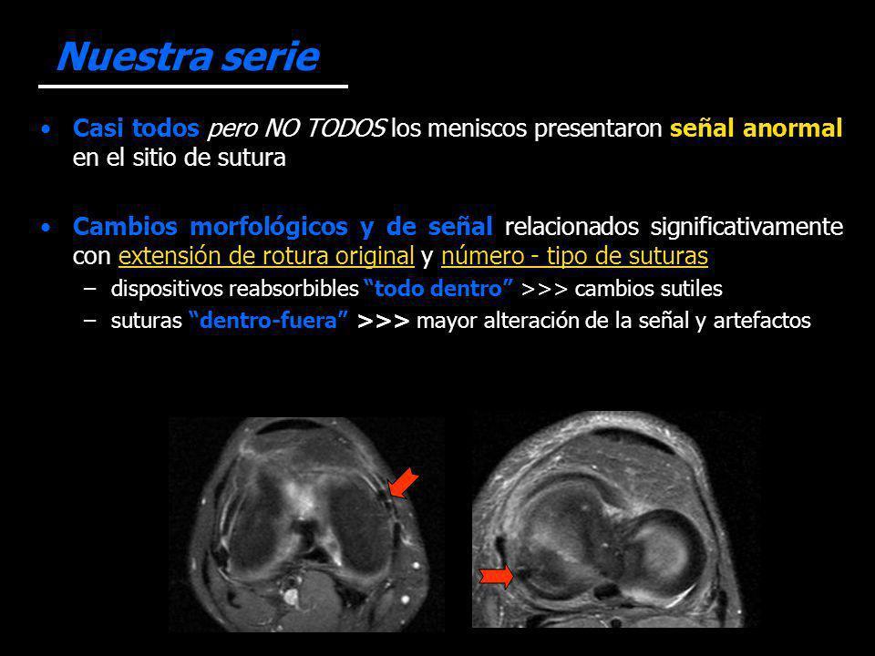 Nuestra serie Casi todos pero NO TODOS los meniscos presentaron señal anormal en el sitio de sutura.