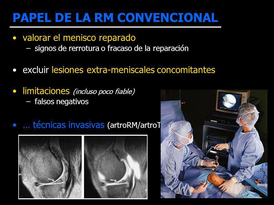 PAPEL DE LA RM CONVENCIONAL