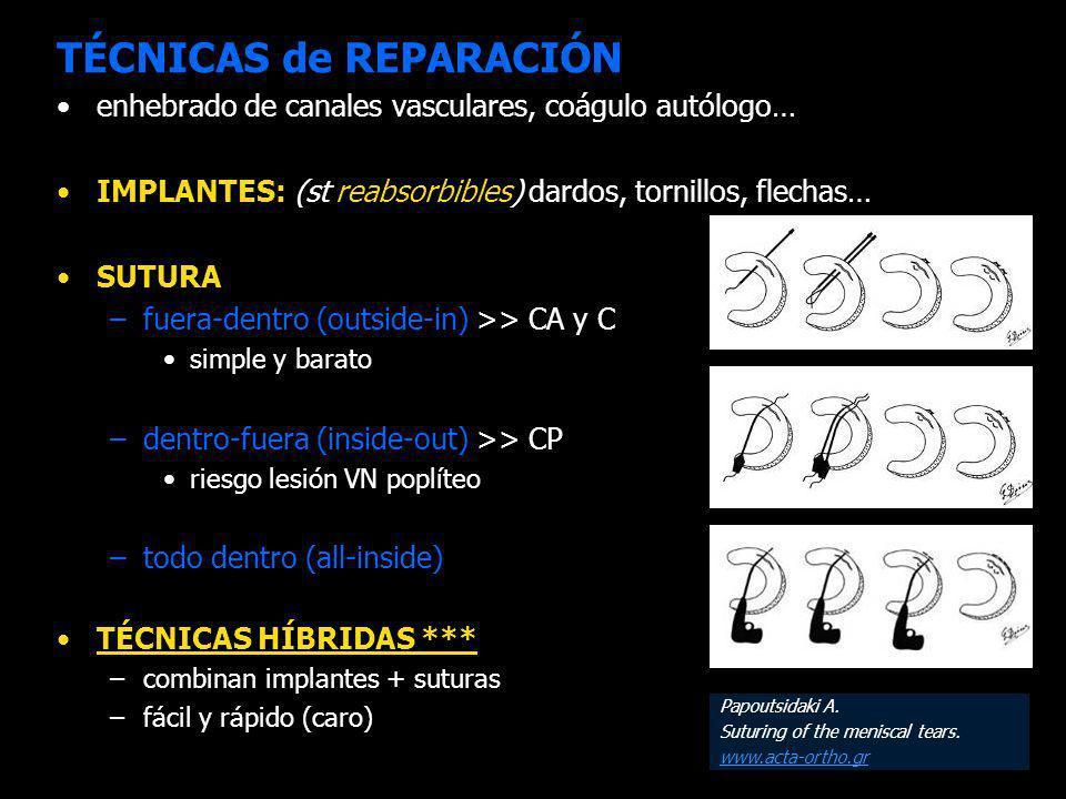 TÉCNICAS de REPARACIÓN
