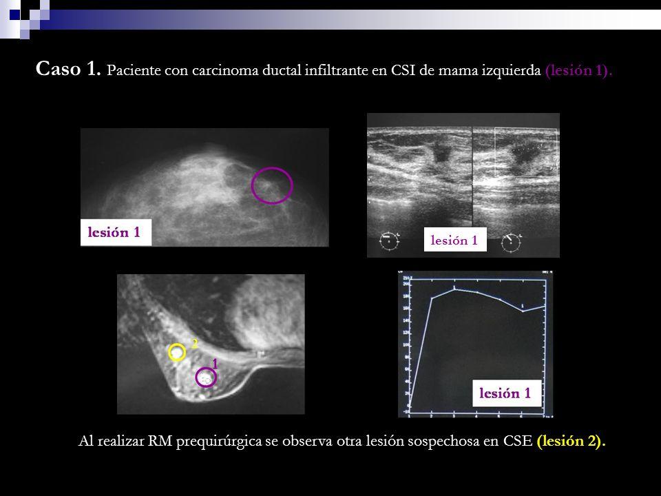 Caso 1. Paciente con carcinoma ductal infiltrante en CSI de mama izquierda (lesión 1).