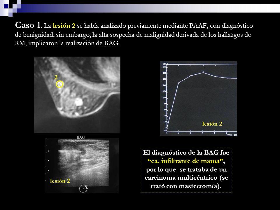 Caso 1. La lesión 2 se había analizado previamente mediante PAAF, con diagnóstico de benignidad; sin embargo, la alta sospecha de malignidad derivada de los hallazgos de RM, implicaron la realización de BAG.