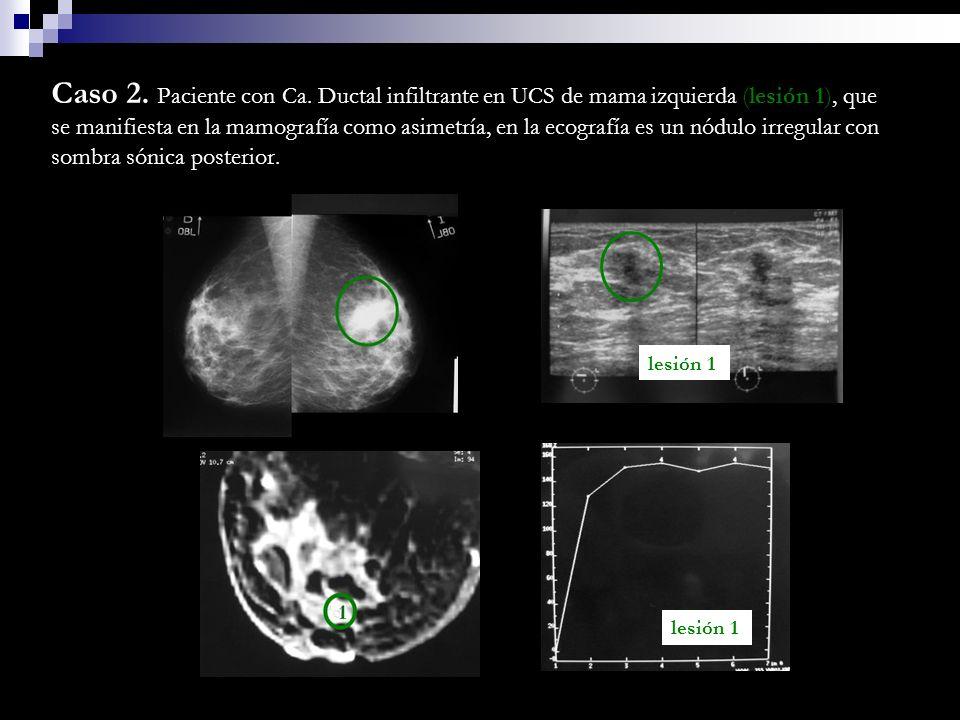 Caso 2. Paciente con Ca. Ductal infiltrante en UCS de mama izquierda (lesión 1), que se manifiesta en la mamografía como asimetría, en la ecografía es un nódulo irregular con sombra sónica posterior.