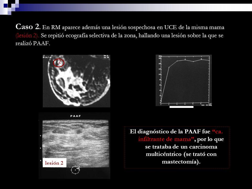 Caso 2. En RM aparece además una lesión sospechosa en UCE de la misma mama (lesión 2). Se repitió ecografía selectiva de la zona, hallando una lesión sobre la que se realizó PAAF.