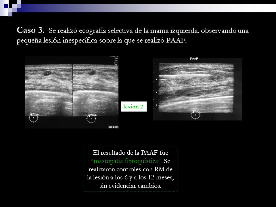 Caso 3. Se realizó ecografía selectiva de la mama izquierda, observando una pequeña lesión inespecífica sobre la que se realizó PAAF.