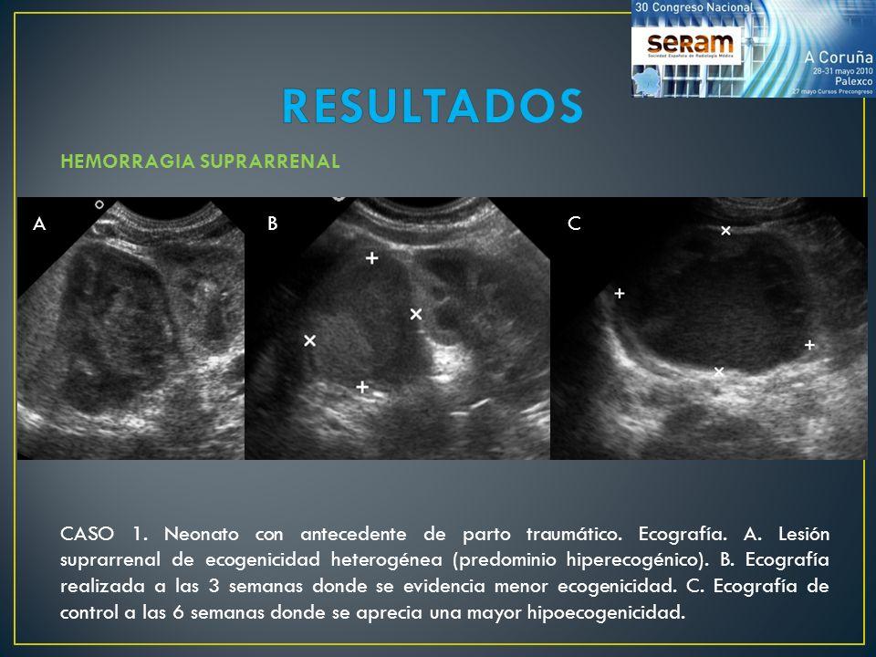 RESULTADOS HEMORRAGIA SUPRARRENAL A B C