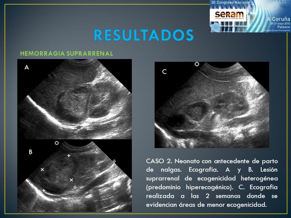 RESULTADOS HEMORRAGIA SUPRARRENAL A C B