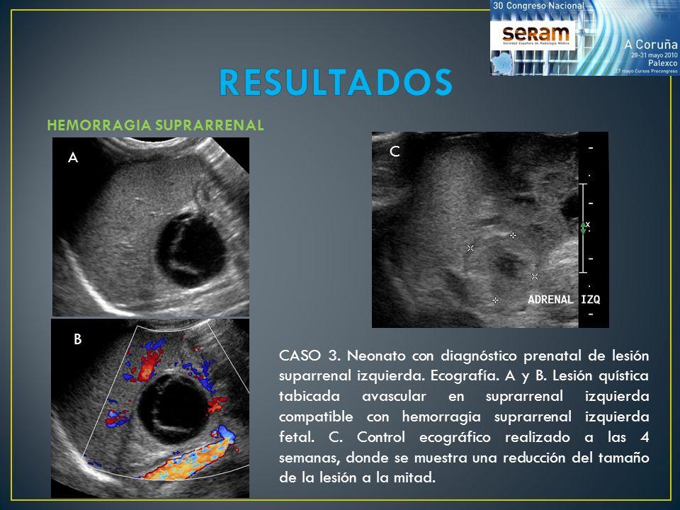 RESULTADOS HEMORRAGIA SUPRARRENAL C A B