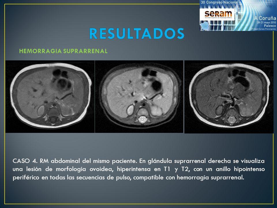 RESULTADOS HEMORRAGIA SUPRARRENAL