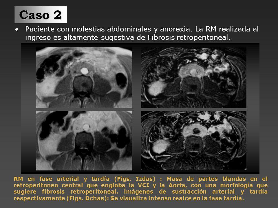 Caso 2Paciente con molestias abdominales y anorexia. La RM realizada al ingreso es altamente sugestiva de Fibrosis retroperitoneal.