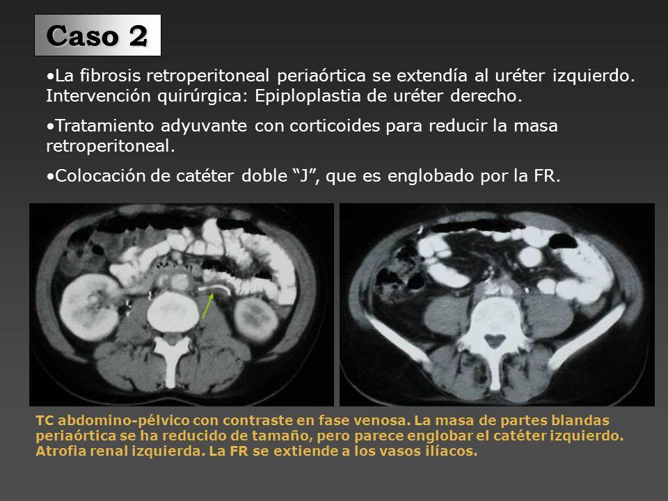 Caso 2La fibrosis retroperitoneal periaórtica se extendía al uréter izquierdo. Intervención quirúrgica: Epiploplastia de uréter derecho.