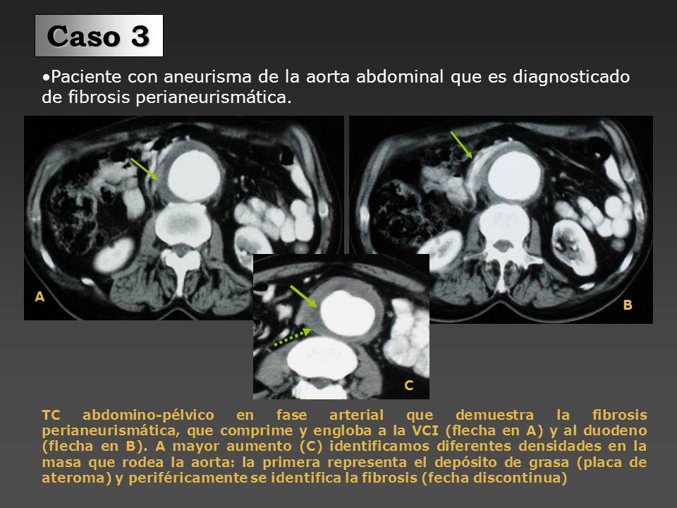 Caso 3 Paciente con aneurisma de la aorta abdominal que es diagnosticado de fibrosis perianeurismática.