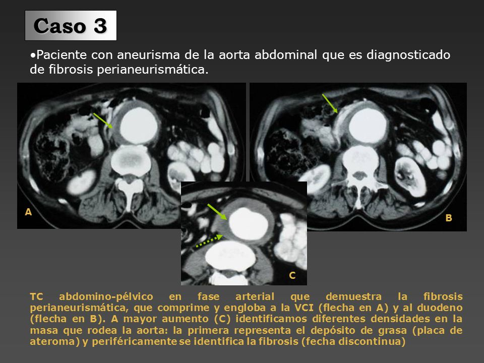 Caso 3Paciente con aneurisma de la aorta abdominal que es diagnosticado de fibrosis perianeurismática.