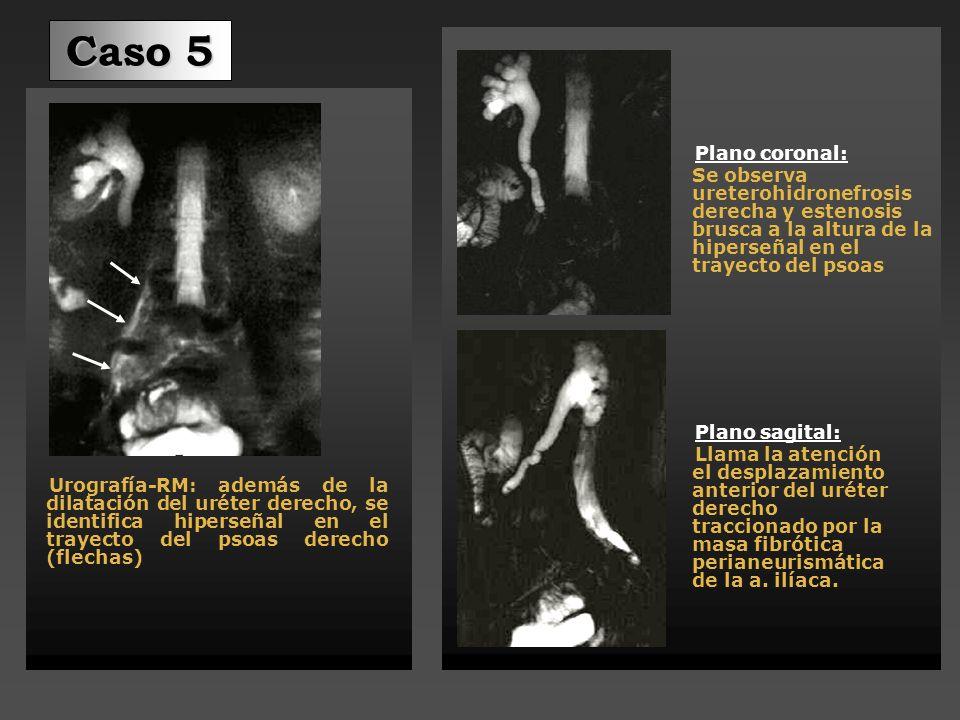 Caso 5 Plano coronal: Se observa ureterohidronefrosis derecha y estenosis brusca a la altura de la hiperseñal en el trayecto del psoas.