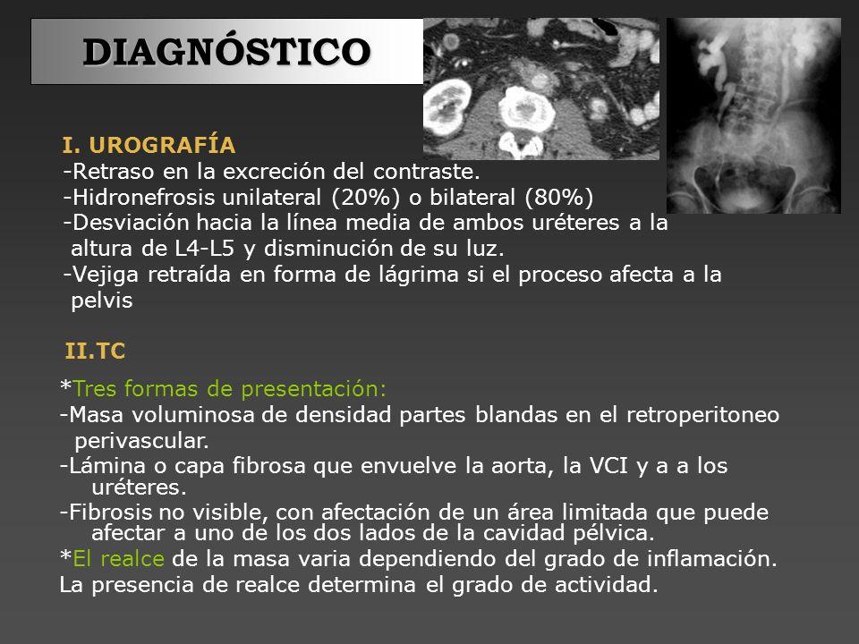 DIAGNÓSTICO I. UROGRAFÍA -Retraso en la excreción del contraste.