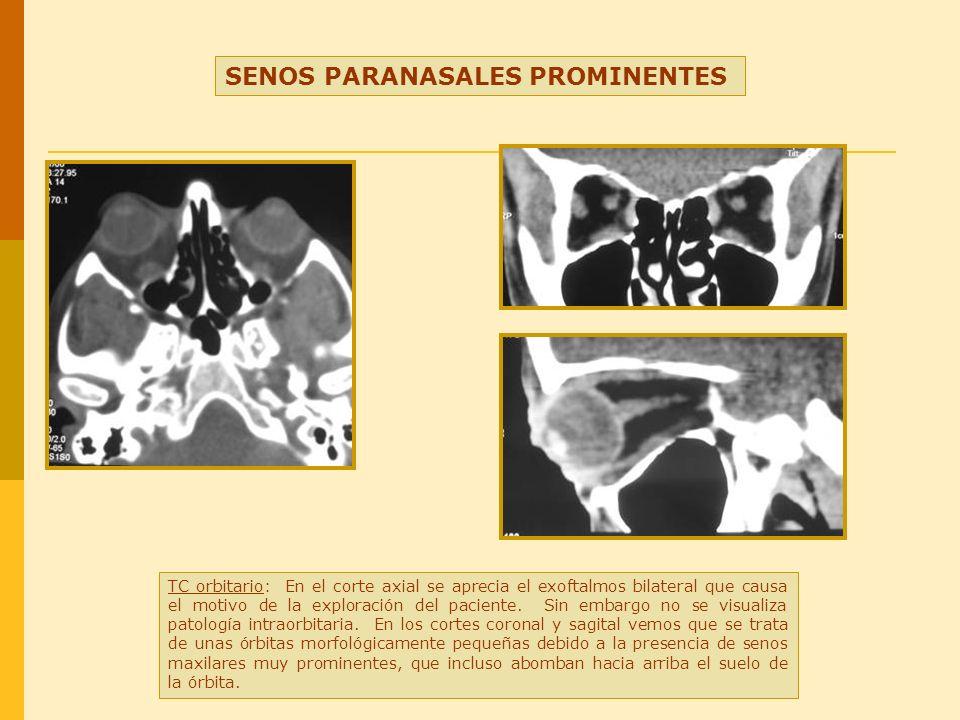 SENOS PARANASALES PROMINENTES