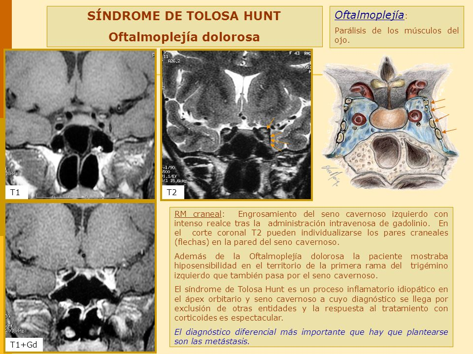 SÍNDROME DE TOLOSA HUNT Oftalmoplejía dolorosa