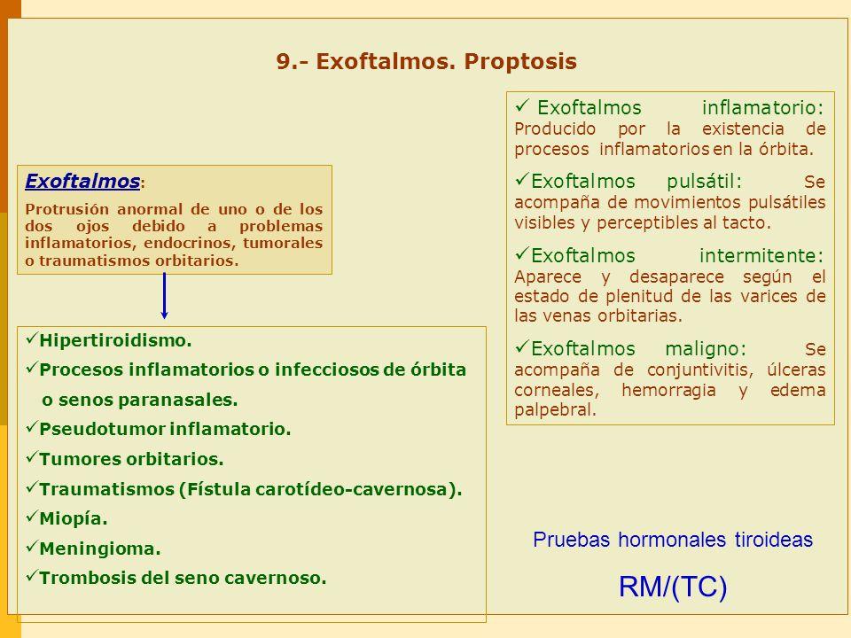 9.- Exoftalmos. Proptosis