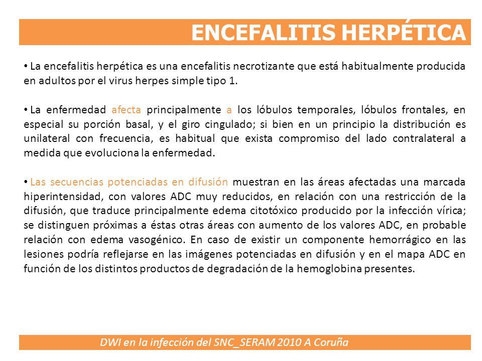 DWI en la infección del SNC_SERAM 2010 A Coruña