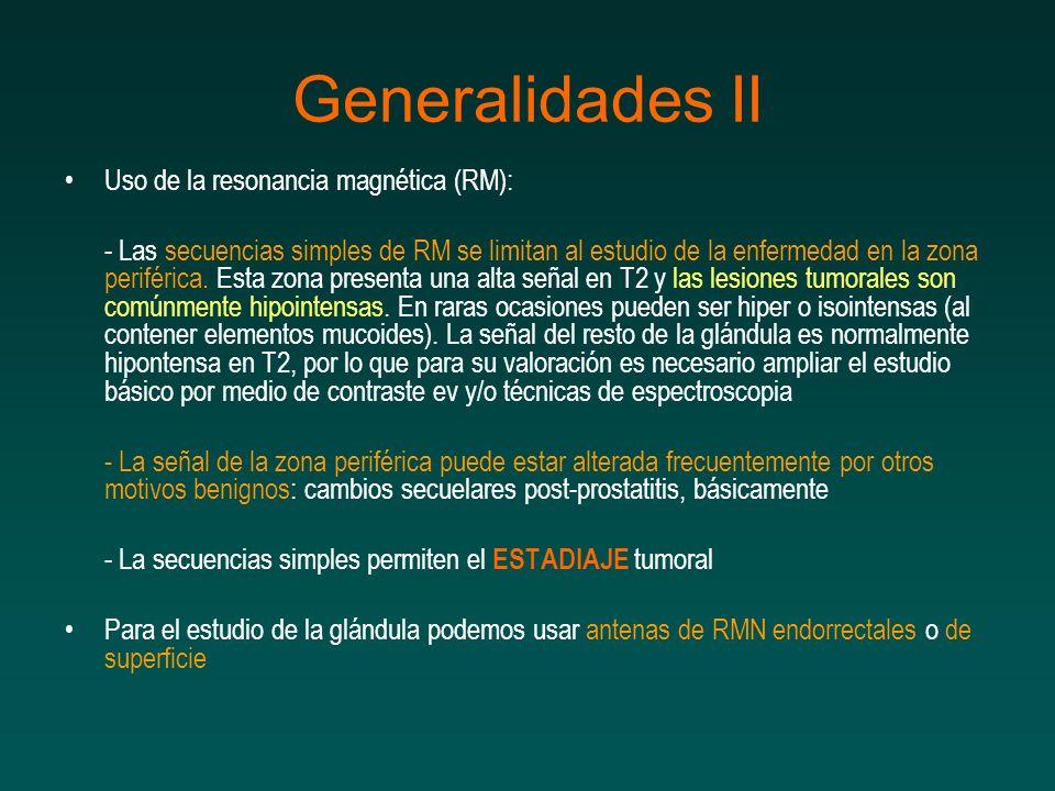 Generalidades II Uso de la resonancia magnética (RM):