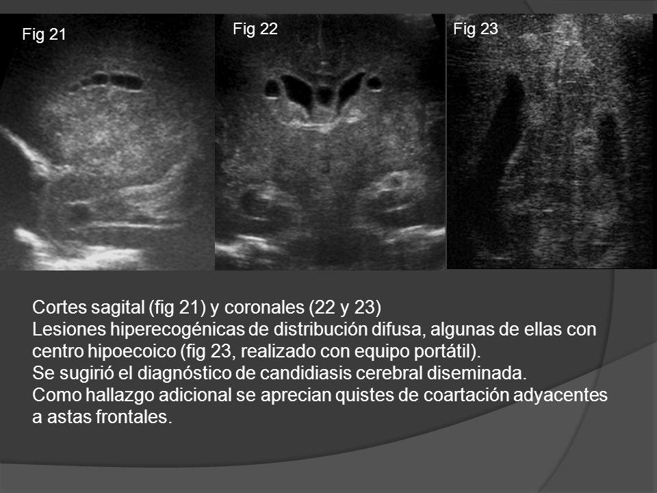 Cortes sagital (fig 21) y coronales (22 y 23)