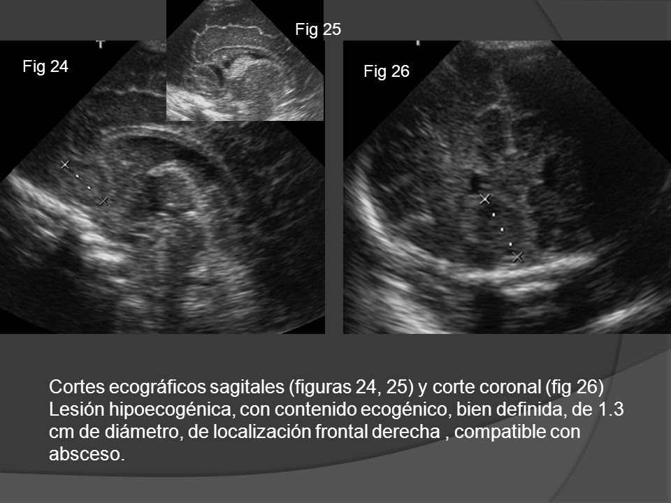 Cortes ecográficos sagitales (figuras 24, 25) y corte coronal (fig 26)
