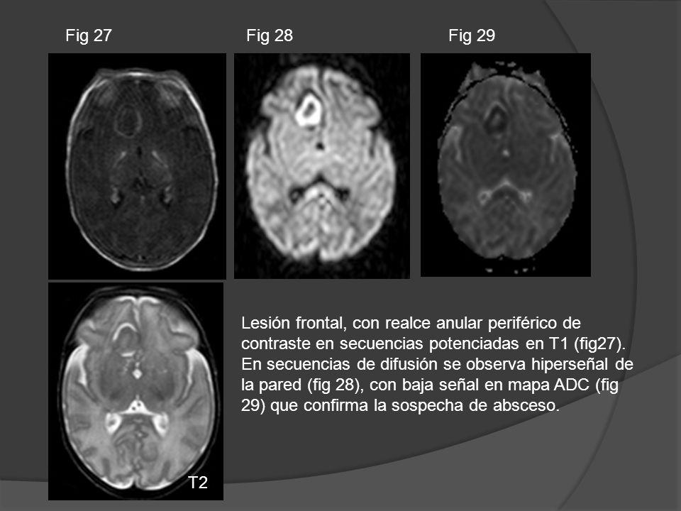 Fig 27 Fig 28. Fig 29. Lesión frontal, con realce anular periférico de contraste en secuencias potenciadas en T1 (fig27).