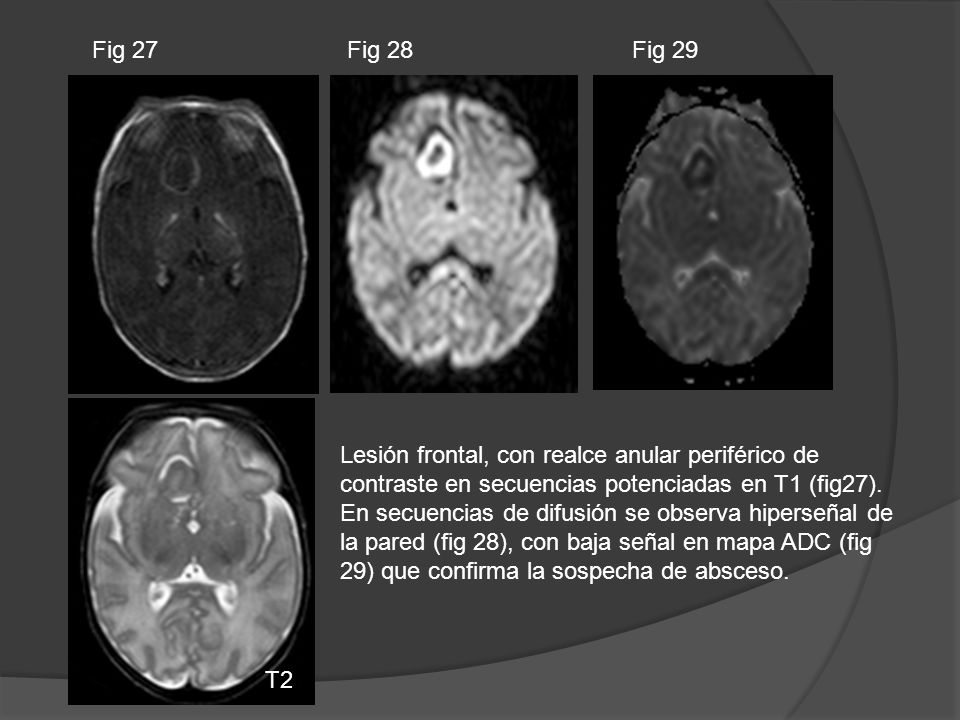 Fig 27Fig 28. Fig 29. Lesión frontal, con realce anular periférico de contraste en secuencias potenciadas en T1 (fig27).
