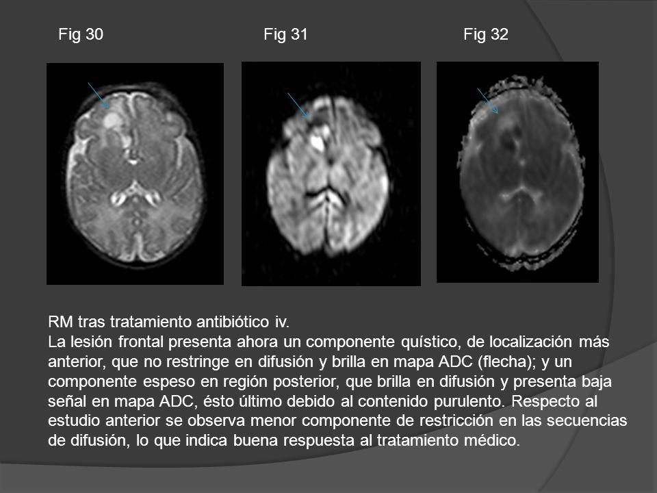Fig 30 Fig 31. Fig 32. RM tras tratamiento antibiótico iv.